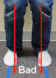 Knees have to move inward in order for the inside of the feet to become weight bearing