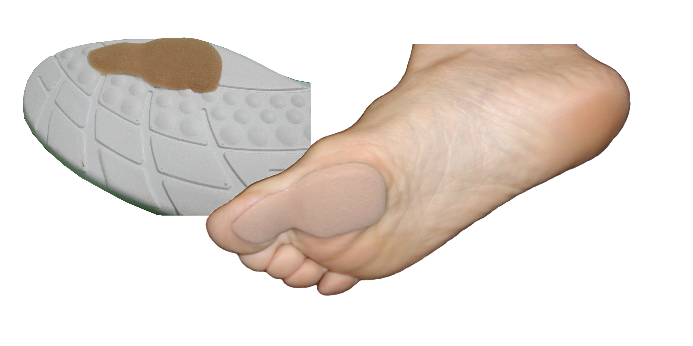 Solemate MicroLift Large Sample